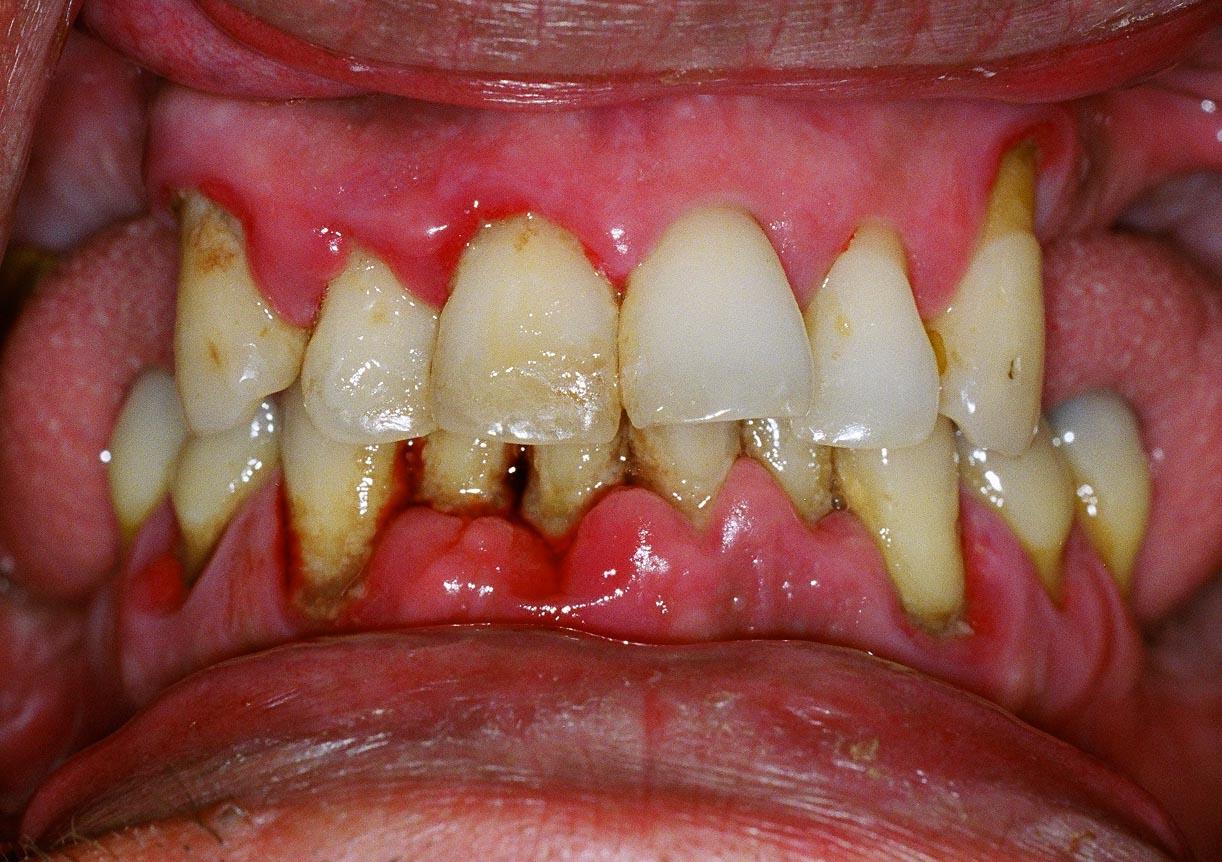 Kết quả hình ảnh cho Periodontitis