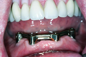 Bar Retained Over Denture Institute Of Dental Implants