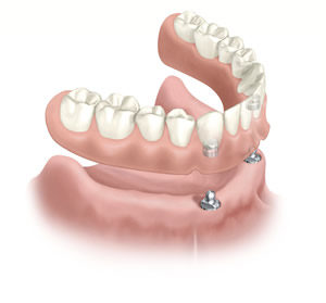 Implant Overdenture Attachments http://implantdentist.co.nz/procedures/45/