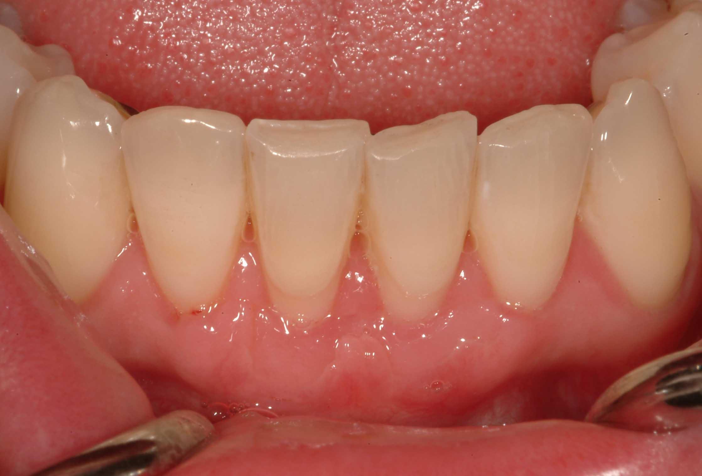 Gum regeneration | Institute of Dental Implants & Periodontics